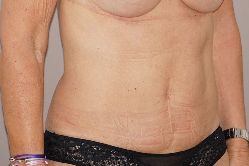 Abdominoplastie 1 before side