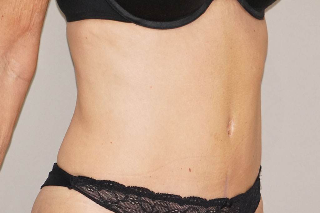 Abdominoplastia reducir de abdomen post-op lateral