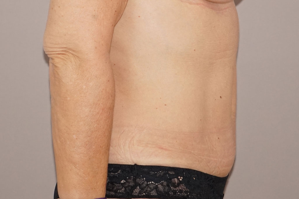 Abdominoplastie 1 before profile