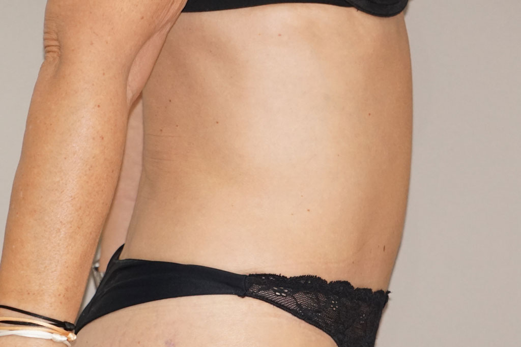Bauchdeckenstraffung ABDOMINOPLASTIK after profile