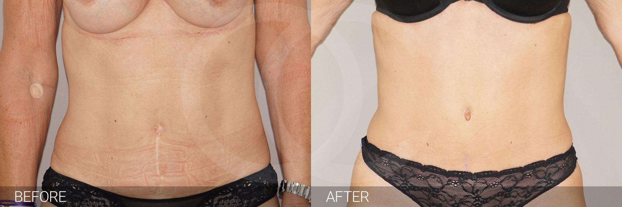 Abdominoplastia reducir de abdomen ante/post-op I