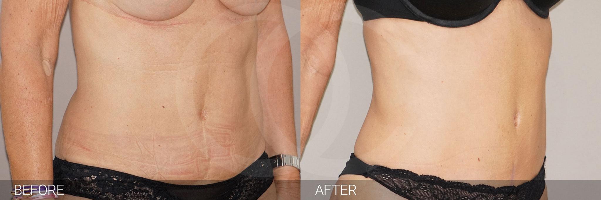 Abdominoplastia reducir de abdomen ante/post-op II