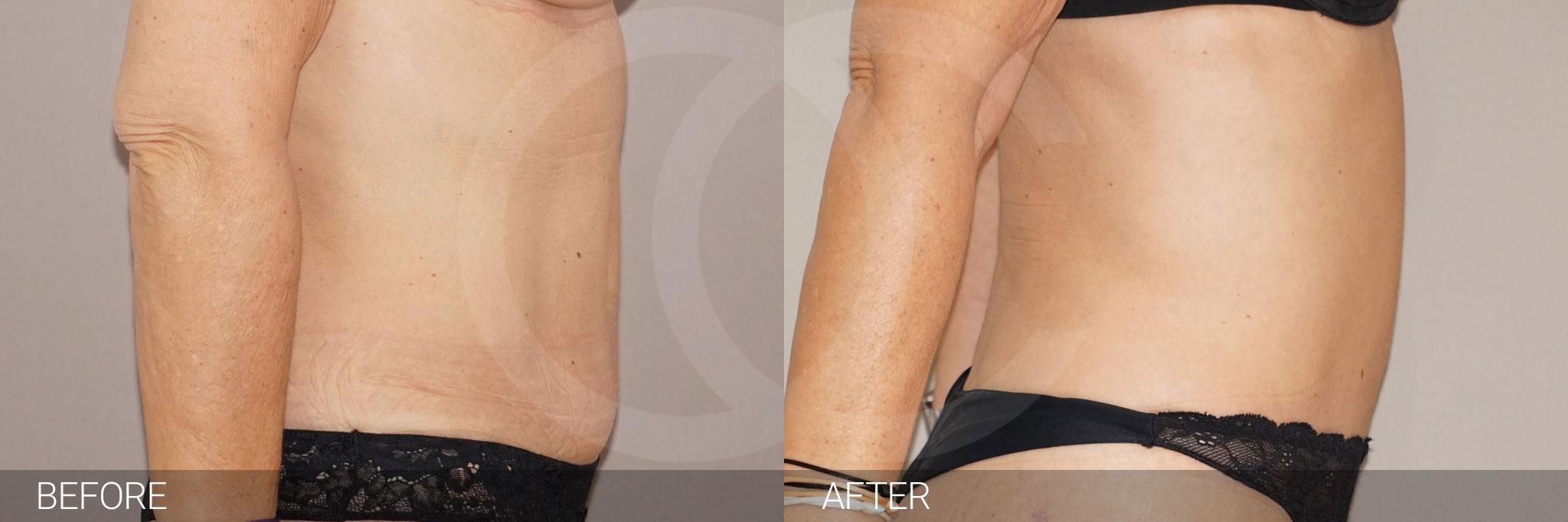 Abdominoplastia reducir de abdomen ante/post-op III