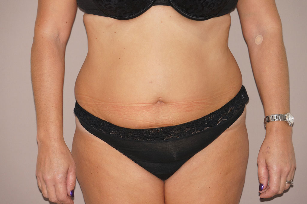 Tummy Tuck Abdominoplasty before forntal