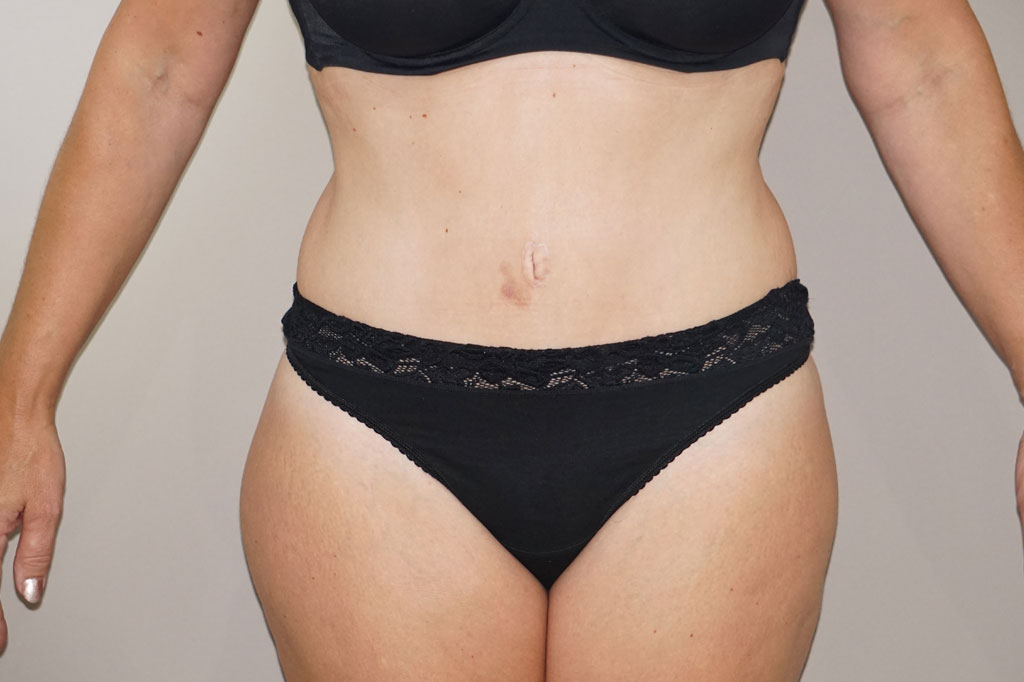 Abdominoplastia Abdominoplastia after frontal