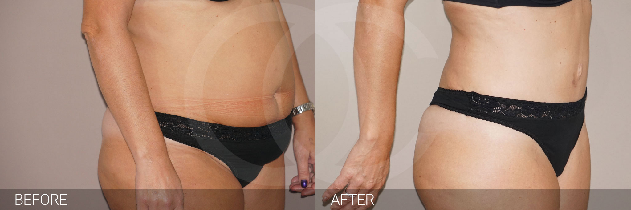 Tummy tuck photo before and after