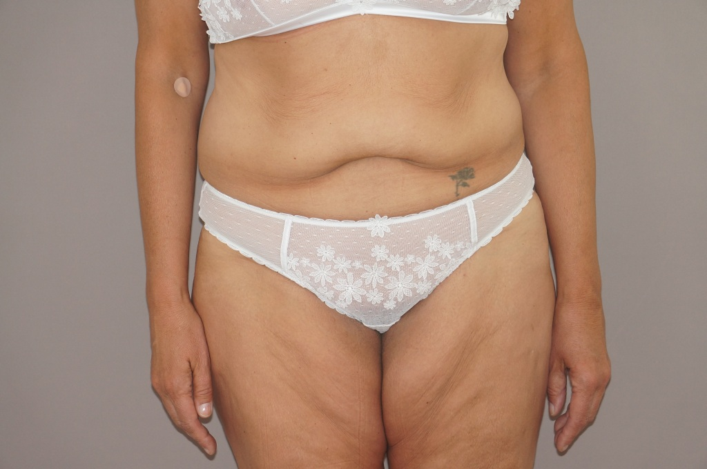 Abdominoplastie 3 before forntal