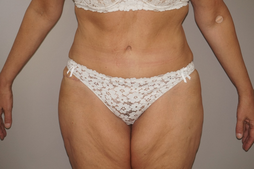 Abdominoplastie 3 after frontal