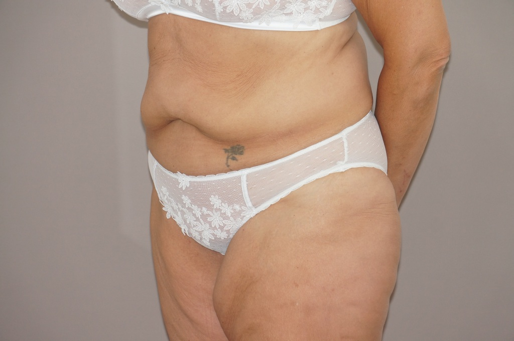 Abdominoplastie 3 before side