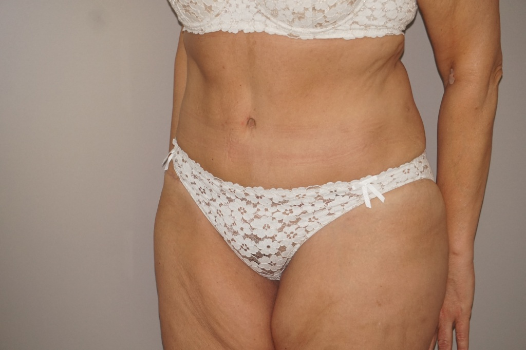 Abdominoplastia RECONSTRUCCIÓN PARED ABDOMINAL after side