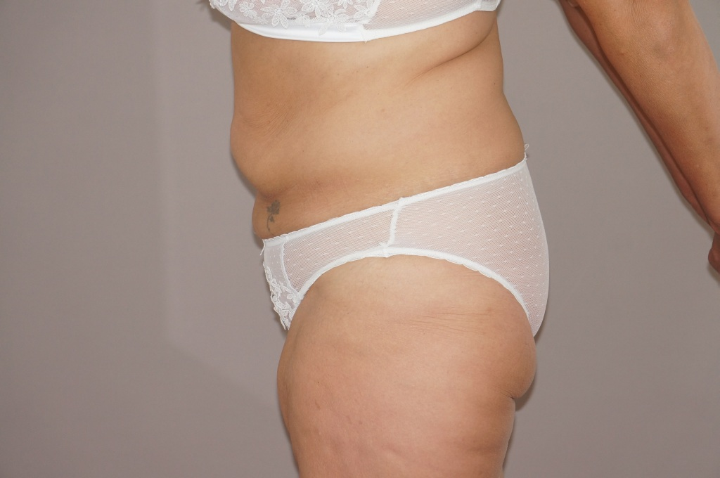 Abdominoplastie 3 before profile