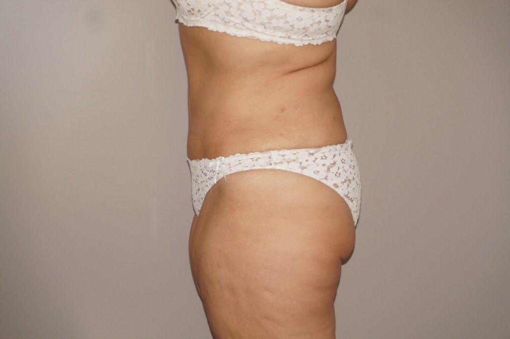Abdominoplastia RECONSTRUCCIÓN PARED ABDOMINAL after profile