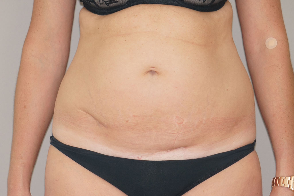 Tummy Tuck RESTORED MUSCLES before forntal