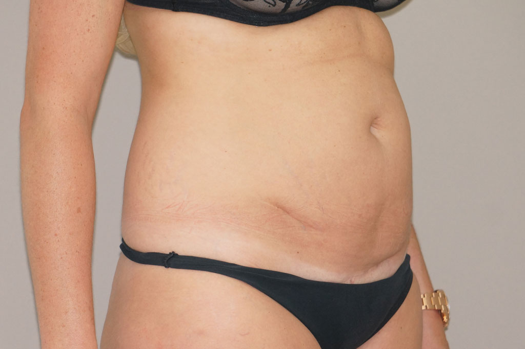 Tummy Tuck RESTORED MUSCLES before side