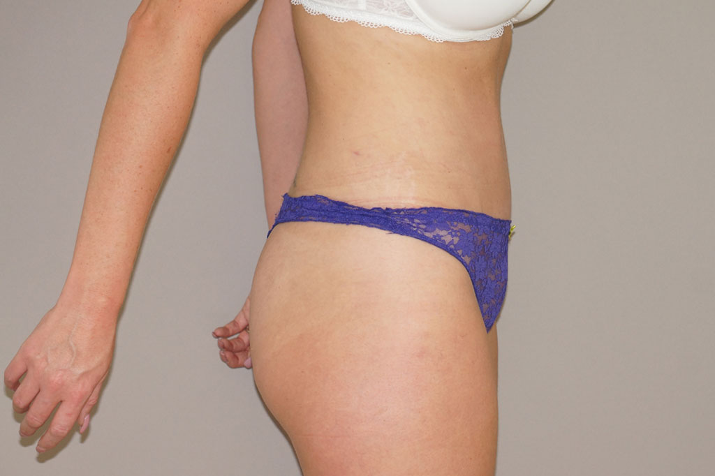 Abdominoplastia Reducción de Abdomen after profile