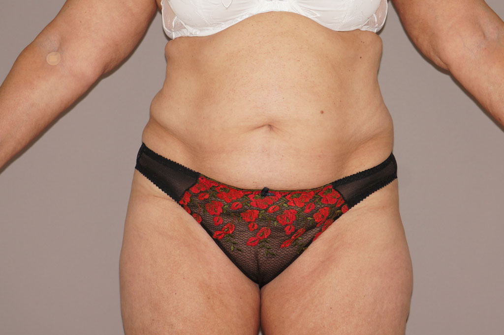 Tummy Tuck WITH LIPOSUCTION before forntal
