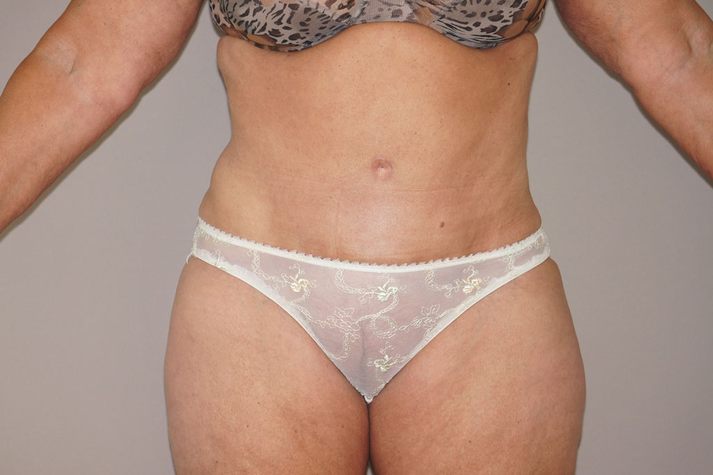 Tummy Tuck WITH LIPOSUCTION after frontal