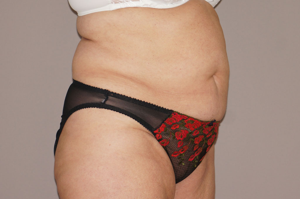 Abdomoniplastia LIPOABDOMINOPLASTIA before side