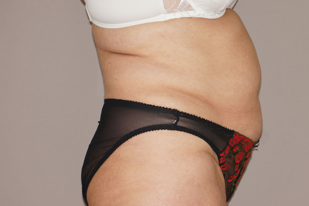 Tummy Tuck WITH LIPOSUCTION before profile