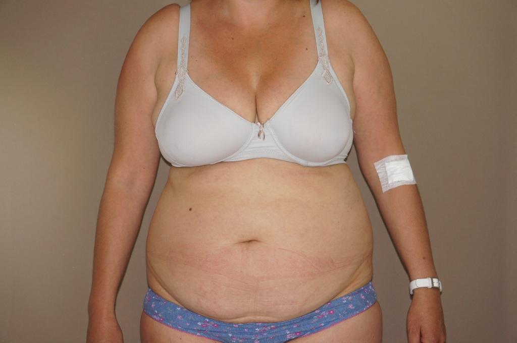 Abdominoplastia Cirugía Abdomen before forntal