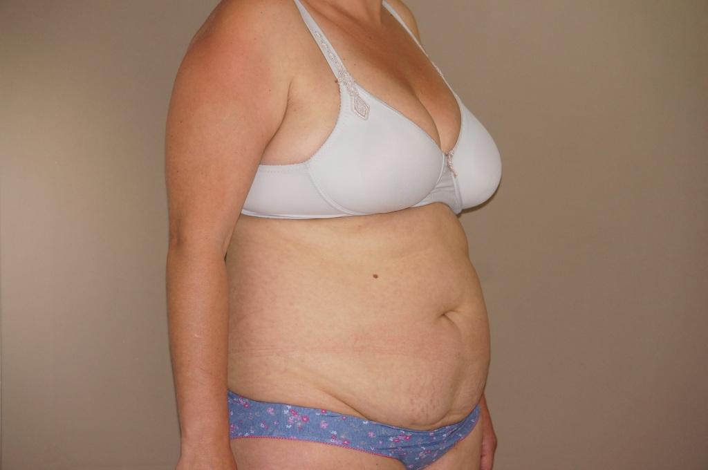 Abdominoplastia Cirugía Abdomen before profile