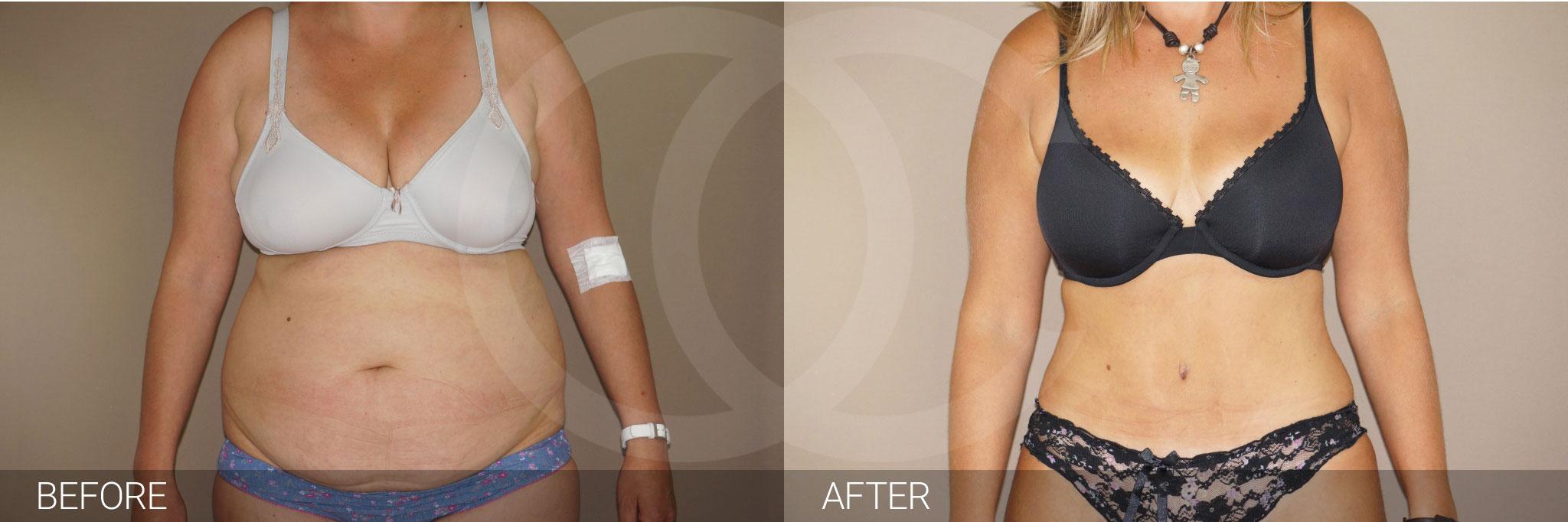 Bauchdeckenstraffung Abdominoplastik ante/post-op I