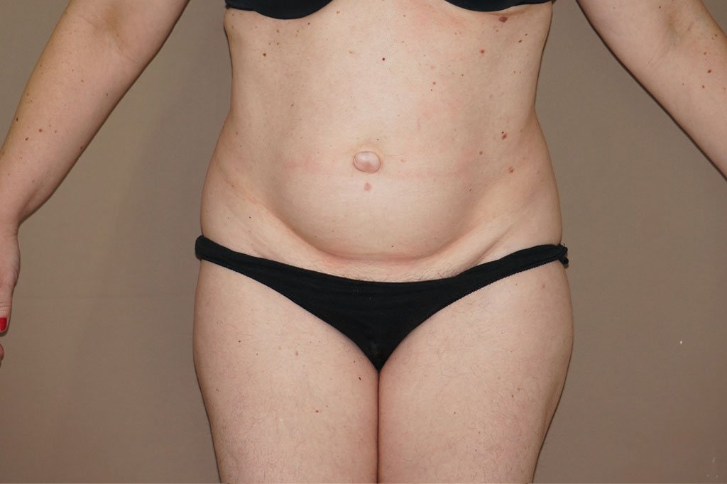Tummy Tuck LIPOABDOMINOPLASTY before forntal
