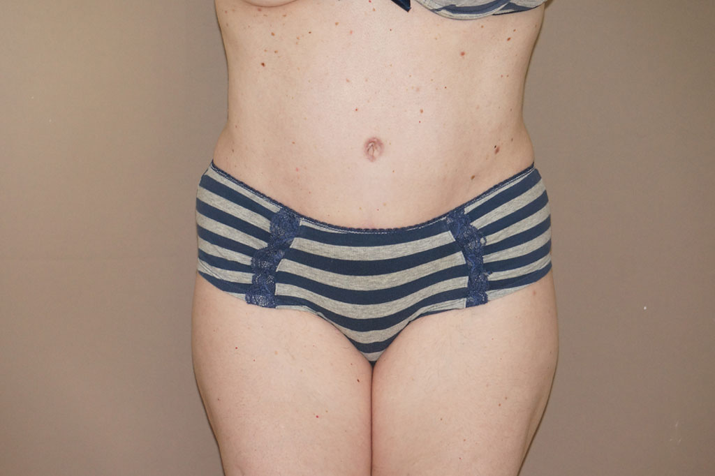 Abdominoplastia CON LIPOSUCCIÓN after frontal