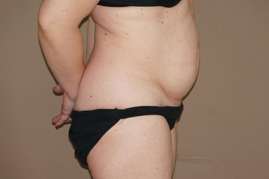 Abdominoplastia CON LIPOSUCCIÓN before profile