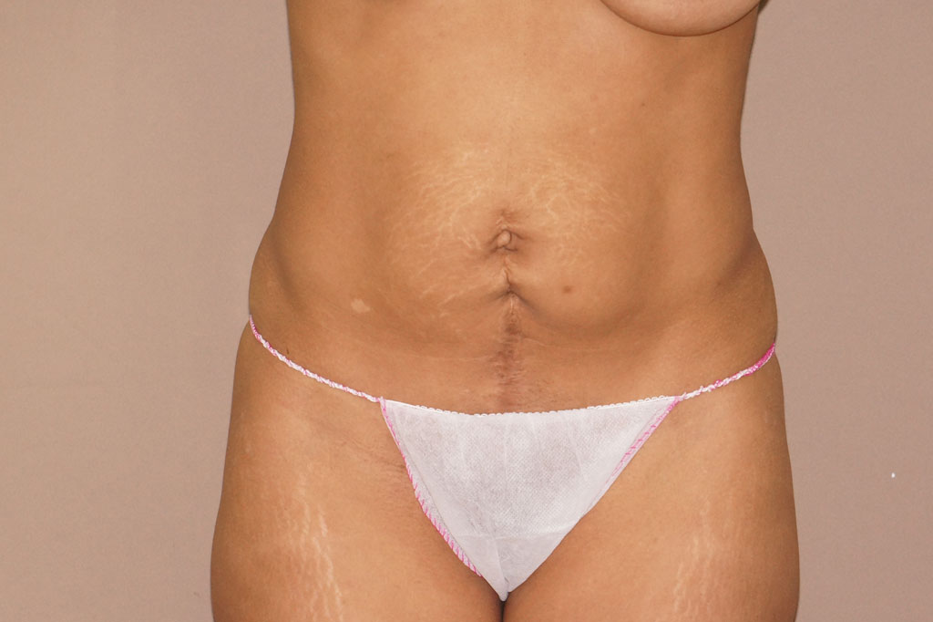 Tummy Tuck UMBILICAL HERNIA REPAIR before forntal