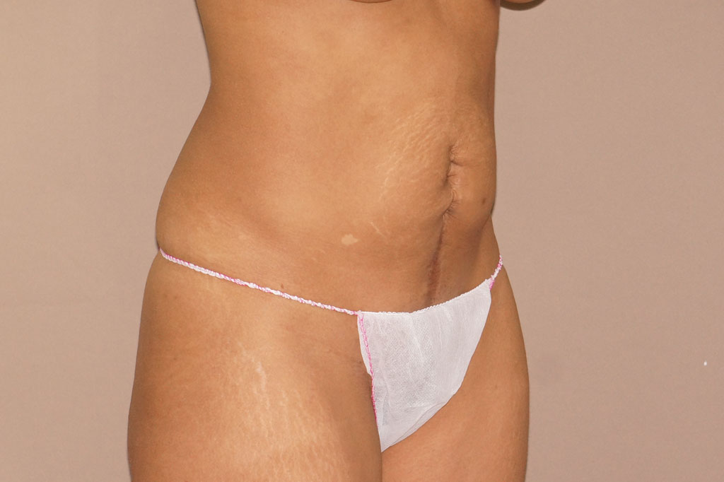 Abdominoplastia ABDOMINOPLASTIA SECUNDARIA before side