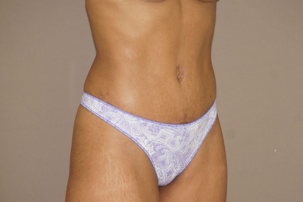 Abdominoplastia ABDOMINOPLASTIA SECUNDARIA after side