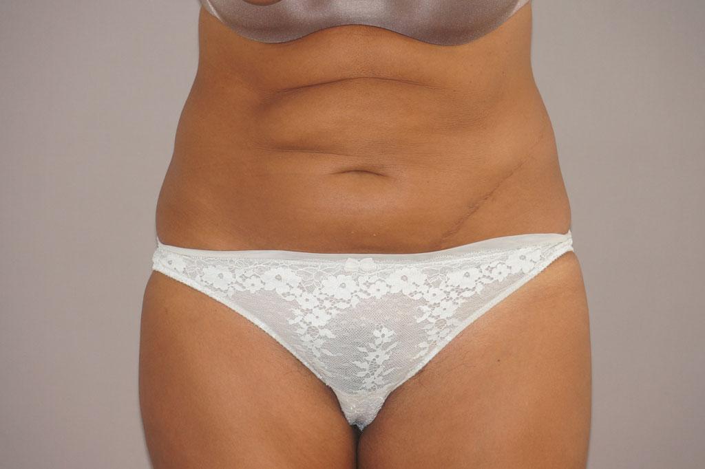 Abdominoplastia CIRUGÍA REDUCCIÓN DE ABDOMEN before forntal