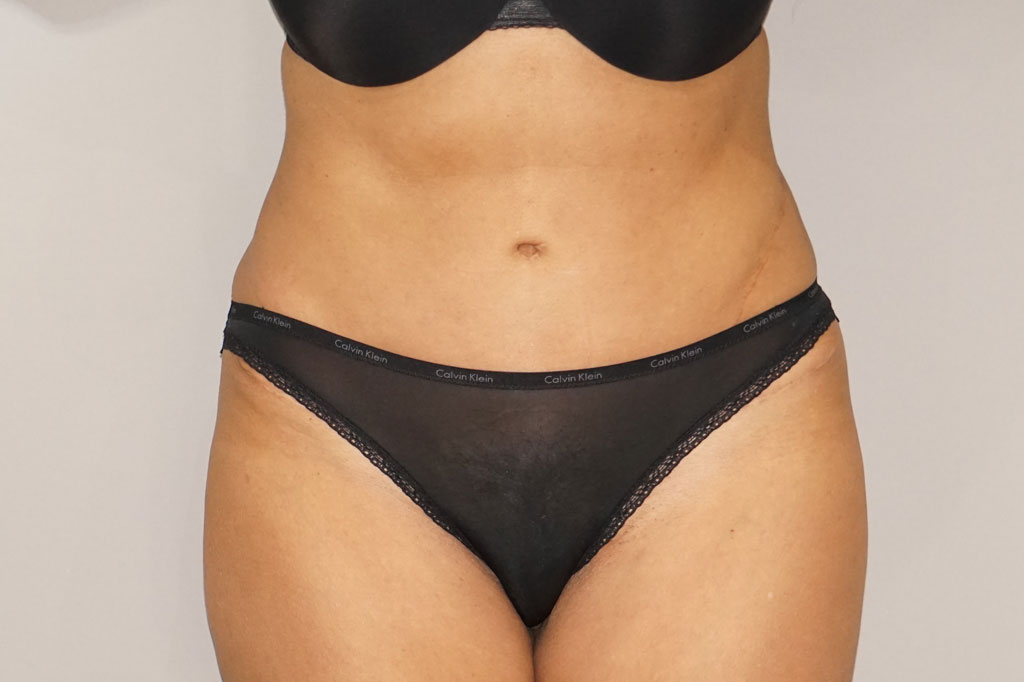 Tummy Tuck Abdominoplasty after frontal