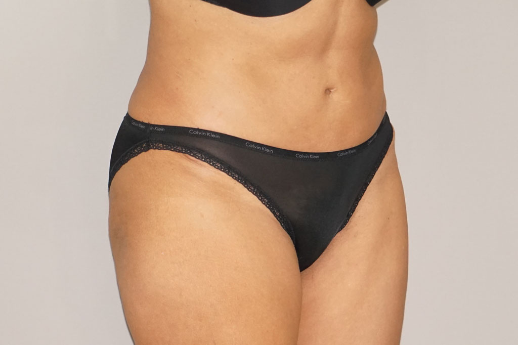 Tummy Tuck Abdominoplasty after side