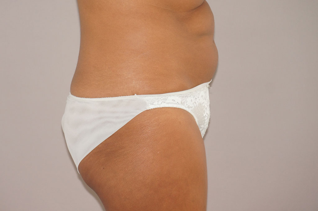 Tummy Tuck Abdominoplasty before profile