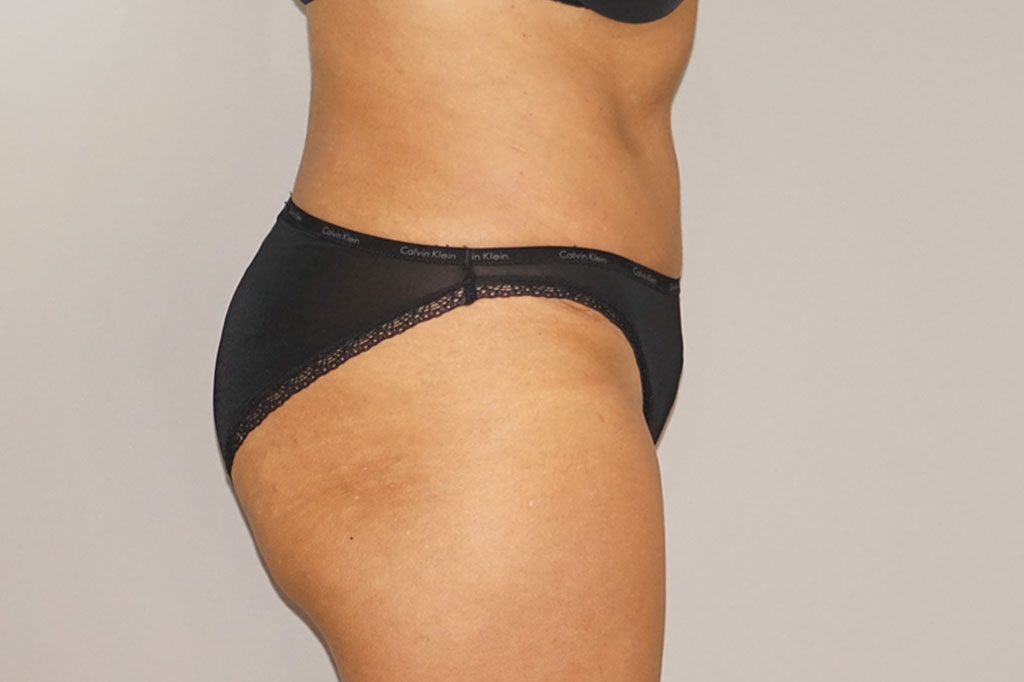 Tummy Tuck Abdominoplasty after profile