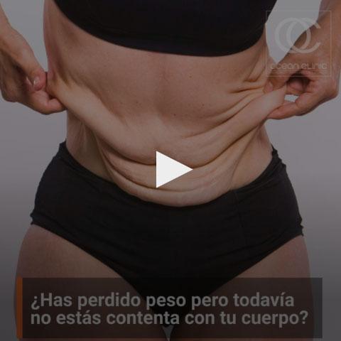¿Has perdido peso pero todavía no estás contenta con tu cuerpo? La piel flácida y colgante es un desafortunado efecto de pérdidas de peso drásticas