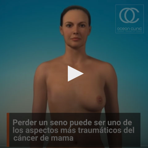 Perder un seno puede ser uno de los aspectos más traumáticos del cáncer de mama. Pero los avances en cirugía reconstructiva pueden ayudarte a recuperar tu apariencia.