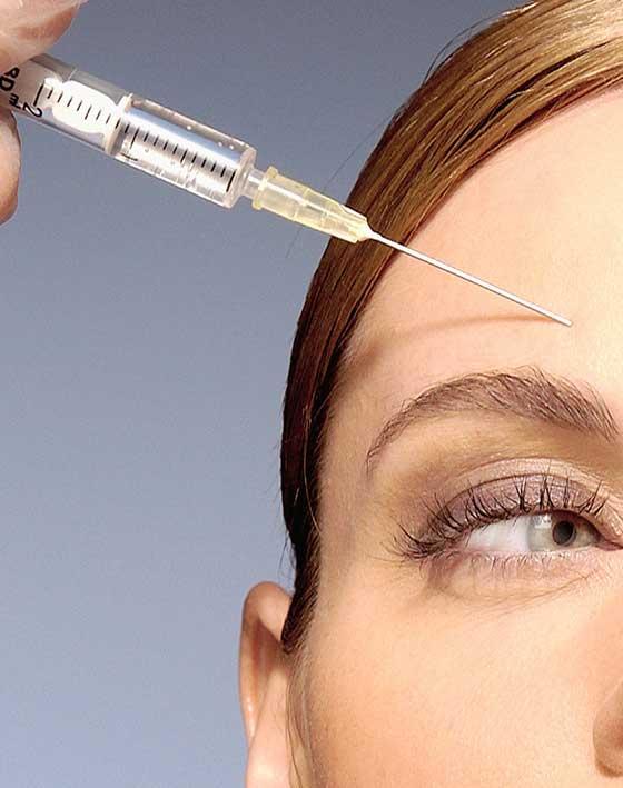 Botox Toxina Botulínica Ocean Clinic Marbella Málaga