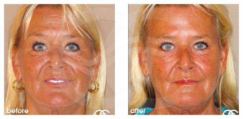 Botox® and Vistabel® Ocean Clinic Marbella Spain