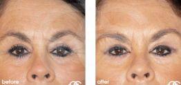 Botox Botulinustoxin Vorher und Nachher Fotogalerie 01 Ocean Clinic Marbella Spanien