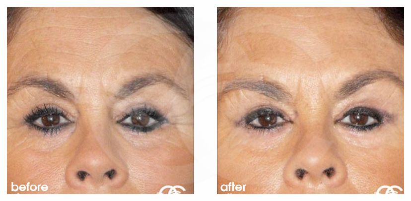 Botox Before After Photo Ocean Clinic Marbella Spain