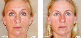 Botox Botulinustoxin Vorher und Nachher Fotogalerie 02 Ocean Clinic Marbella Spanien