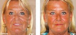 Botox Botulinustoxin Vorher und Nachher Fotogalerie 03 Ocean Clinic Marbella Spanien