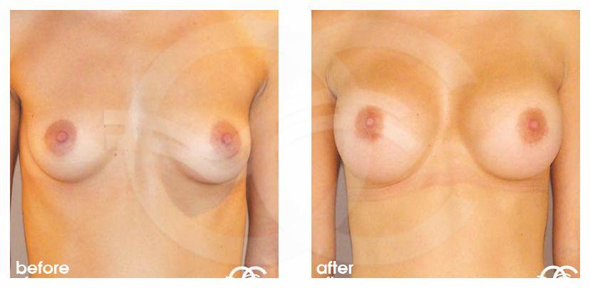 Brustvergrößerung Vorher Nachher 300cc High Profile Marbella Ocean Clinic
