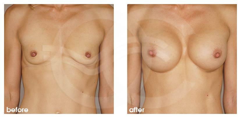 Augmentation Mammaire Avant Après implants 350cc rondes Photo Marbella Ocean Clinic