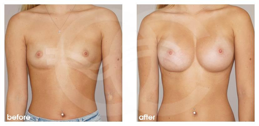 Brustvergrößerung Vorher Nachher 300cc Anatomisch High Profile Marbella Ocean Clinic