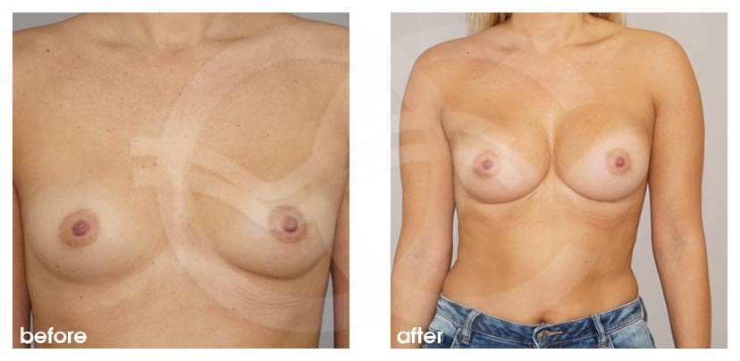 Breast Augmentation Anatomical High Profile Implants 280 cc, Dual Plane, 3 Month post OP Before After Marbella Ocean Clinic