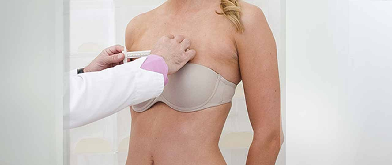 Breast Augmentation Traditional Implants. Marbella Ocean Clinic